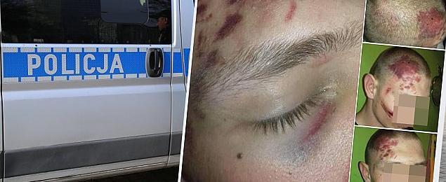 Akcja policji na Targówku. Kto kogo pobi³?