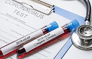 Bezp³atne testy na koronawirusa. Dwa punkty na terenie Bielan
